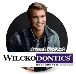 Richmond Wilckodontics Orthodontist