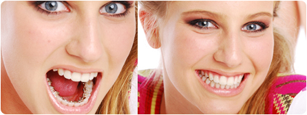 Braces Behind Your Teeth