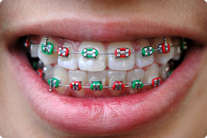 ashland va orthodontist what does your braces rubber band color say about you