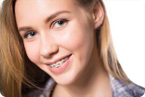 midlothian va orthodontist do braces cause white spots