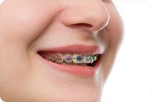 glen allen va orthodontist how much do braces cost