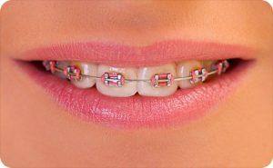 richmond va orthodontist healthy teeth braces