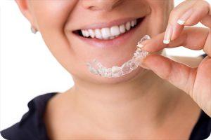 richmond va orthodontist invisalign myths
