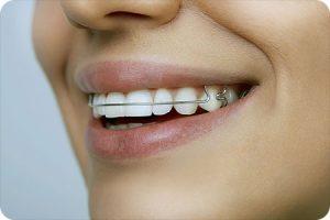 richmond va orthodontist retainer care