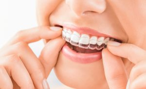 best-orthodontist-in-richmond-va-invisalign-for-children