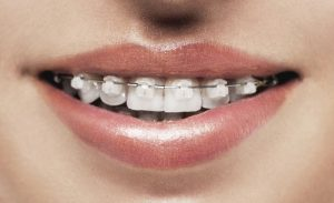 orthodontics for adults