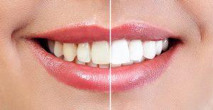 orthodontics richmond va