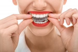 orthodontist glen allen va