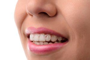 orthodontist glen allen va