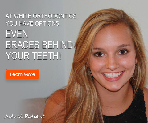 orthodontists-in-richmond