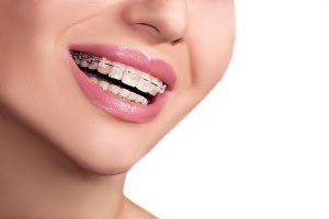 pediatric orthodontist richmond